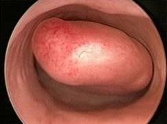 Histeroskopinin ne zaman yapılması en uygundur?